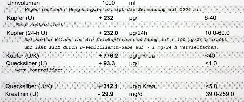 Laboranalyse zur Quecksilberausleitung