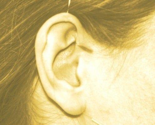 Eine Frau wird mit Ohrakupunktur behandelt